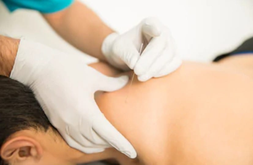 An example of dry needling on a persons shoulder.